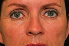 Eyelid Surgery Before Photo by Robert Buchanan, MD; Highlands, NC - Case 27172