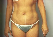 Liposuction After Photo by Robert Buchanan, MD; Highlands, NC - Case 27173