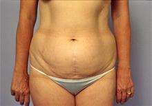 Liposuction Before Photo by Robert Buchanan, MD; Highlands, NC - Case 27173