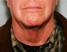 Liposuction After Photo by Robert Buchanan, MD; Highlands, NC - Case 27174