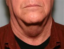 Liposuction Before Photo by Robert Buchanan, MD; Highlands, NC - Case 27174