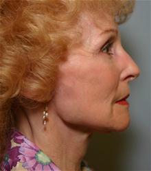 Facelift After Photo by Robert Buchanan, MD; Highlands, NC - Case 27175