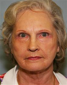 Facelift After Photo by Robert Buchanan, MD; Highlands, NC - Case 27176