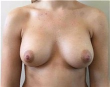 Breast Augmentation After Photo by Sean Doherty, MD; Boston, MA - Case 33401