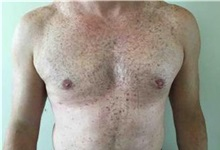 Male Breast Reduction After Photo by Sean Doherty, MD; Brookline, MA - Case 33417