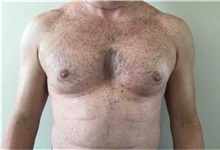 Male Breast Reduction Before Photo by Sean Doherty, MD; Brookline, MA - Case 33417