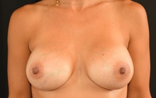 Breast Augmentation After Photo by Sean Doherty, MD; Brookline, MA - Case 42756