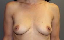 Breast Augmentation Before Photo by Sean Doherty, MD; Brookline, MA - Case 42756