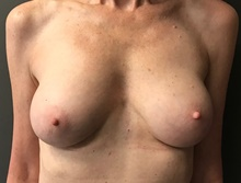 Breast Augmentation After Photo by Sean Doherty, MD; Brookline, MA - Case 42759