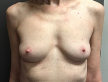 Breast Augmentation Before Photo by Sean Doherty, MD; Brookline, MA - Case 42759