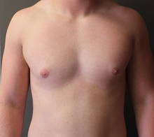 Male Breast Reduction After Photo by Sean Doherty, MD; Brookline, MA - Case 42760