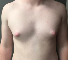 Male Breast Reduction Before Photo by Sean Doherty, MD; Brookline, MA - Case 42760