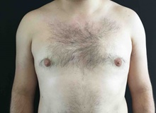 Male Breast Reduction After Photo by Sean Doherty, MD; Brookline, MA - Case 42762