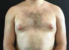 Male Breast Reduction Before Photo by Sean Doherty, MD; Brookline, MA - Case 42762