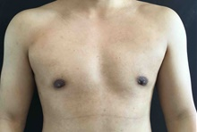 Male Breast Reduction After Photo by Sean Doherty, MD; Brookline, MA - Case 42764