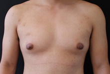 Male Breast Reduction Before Photo by Sean Doherty, MD; Brookline, MA - Case 42764