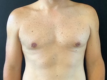 Male Breast Reduction After Photo by Sean Doherty, MD; Brookline, MA - Case 42765