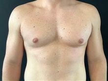 Male Breast Reduction Before Photo by Sean Doherty, MD; Brookline, MA - Case 42765