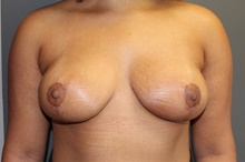 Breast Lift After Photo by Sean Doherty, MD; Brookline, MA - Case 42766