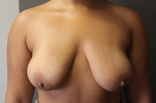 Breast Lift Before Photo by Sean Doherty, MD; Brookline, MA - Case 42766
