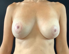 Breast Lift After Photo by Sean Doherty, MD; Brookline, MA - Case 42767