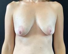 Breast Lift Before Photo by Sean Doherty, MD; Brookline, MA - Case 42767