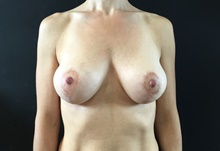 Breast Lift After Photo by Sean Doherty, MD; Brookline, MA - Case 42768