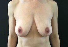 Breast Lift Before Photo by Sean Doherty, MD; Brookline, MA - Case 42768