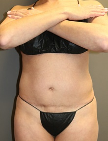 Liposuction Before Photo by Sean Doherty, MD; Brookline, MA - Case 42769