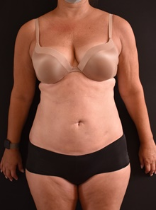 Liposuction After Photo by Sean Doherty, MD; Brookline, MA - Case 42770