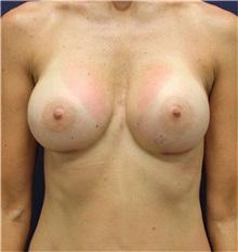 Breast Augmentation After Photo by Jason Cooper, MD; Jupiter, FL - Case 31212