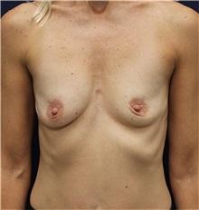 Breast Augmentation Before Photo by Jason Cooper, MD; Jupiter, FL - Case 31212