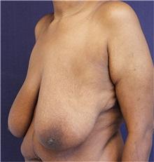 Breast Lift Before Photo by Jason Cooper, MD; Jupiter, FL - Case 31213