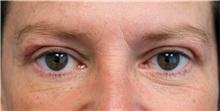 Eyelid Surgery After Photo by Jason Cooper, MD; Jupiter, FL - Case 31214