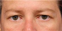 Eyelid Surgery Before Photo by Jason Cooper, MD; Jupiter, FL - Case 31214