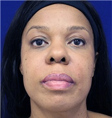 Dermal Fillers After Photo by Jason Cooper, MD; Jupiter, FL - Case 31216