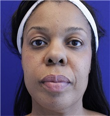 Dermal Fillers Before Photo by Jason Cooper, MD; Jupiter, FL - Case 31216
