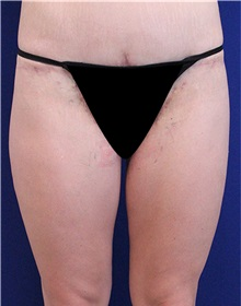 Thigh Lift After Photo by Jason Cooper, MD; Jupiter, FL - Case 31220