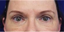 Eyelid Surgery After Photo by Jason Cooper, MD; Jupiter, FL - Case 31224