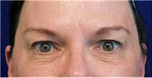 Eyelid Surgery Before Photo by Jason Cooper, MD; Jupiter, FL - Case 31224
