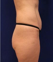 Tummy Tuck After Photo by Jason Cooper, MD; Jupiter, FL - Case 32222