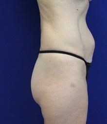 Tummy Tuck Before Photo by Jason Cooper, MD; Jupiter, FL - Case 32222