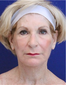 Facelift After Photo by Jason Cooper, MD; Jupiter, FL - Case 32223