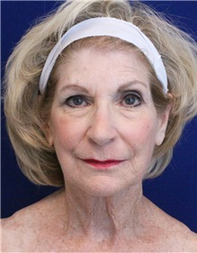 Facelift Before Photo by Jason Cooper, MD; Jupiter, FL - Case 32223