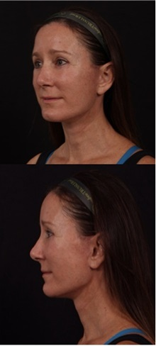 Facelift After Photo by Andrew Trussler, MD FACS; Austin, TX - Case 37089