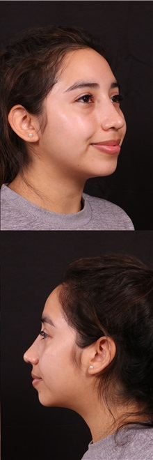 Rhinoplasty After Photo by Andrew Trussler, MD FACS; Austin, TX - Case 37109