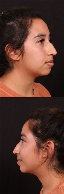 Rhinoplasty Before Photo by Andrew Trussler, MD FACS; Austin, TX - Case 37109