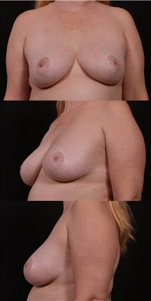 Breast Lift After Photo by Andrew Trussler, MD FACS; Austin, TX - Case 37134