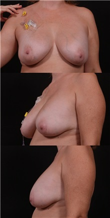 Breast Lift Before Photo by Andrew Trussler, MD FACS; Austin, TX - Case 37134