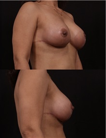 Breast Lift After Photo by Andrew Trussler, MD FACS; Austin, TX - Case 37136